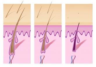 Haarausfall Prozess Illustration