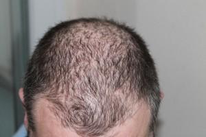 Ein Mann mit Haarausfall und lichtem Haar